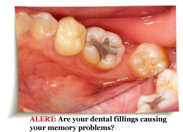 Are your dental filling causing your memory problems?